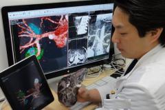 医生使用3D打印机创建复制人体器官